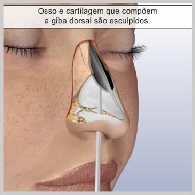 Rinopastia-Fechada-OSTEOTOMIA