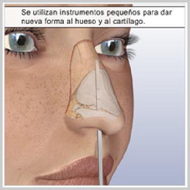 Rinoplastia-Tecnica-Cerrada-CÓMO-FUNCIONA-LA-RINOPLASTIA-CERRADA