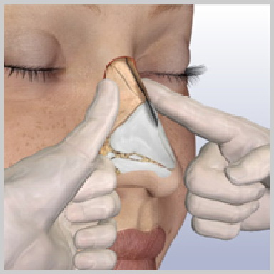 Rinoplastia-Tecnica-Cerrada-OSTEOTOMÍA