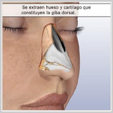 Rinoplastia-Tecnica-Cerrada-REMOCIÓN-DE-LA-GIBA-DORSAL
