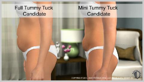 Tummy-Tuck-Full-OPTIONS