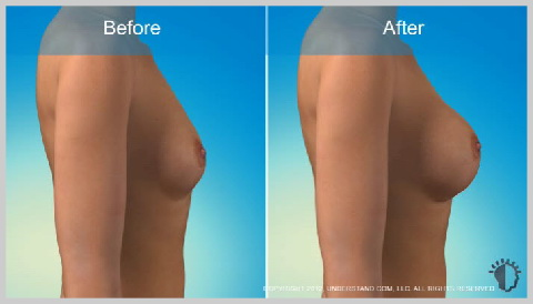 breast-augmentation-saline-implants-RISKS-AND-RESULTS