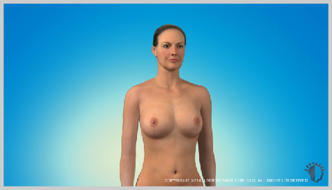 breast-lift-RESULTS