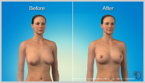breast-lift-with-implants-RISKS-AND-RESULTS