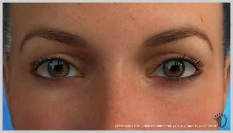 face-lift-full-UPPER-EYELIDS-AND-LOWER-EYELIDS