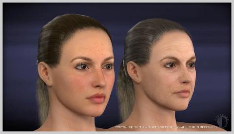 face-lift-lower-INTRODUTION