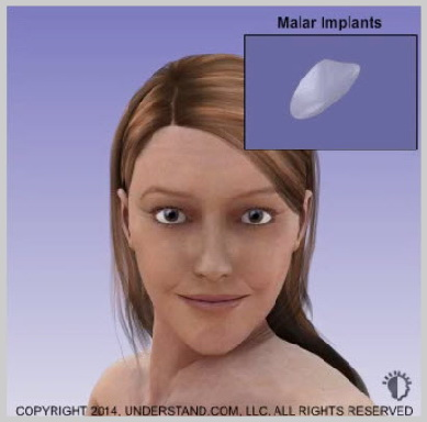 facial-implants-CHEEK-(MALAR)-IMPLANTS