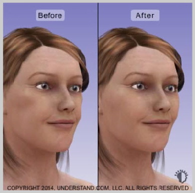facial-implants-RESULTS