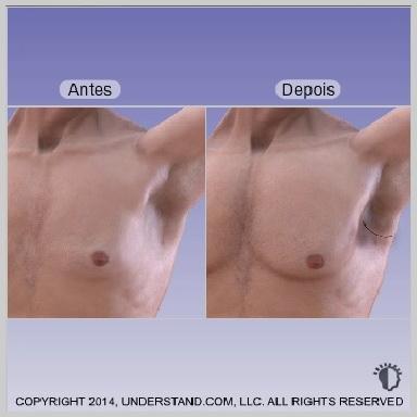 implante-peitoral-RESULTADO