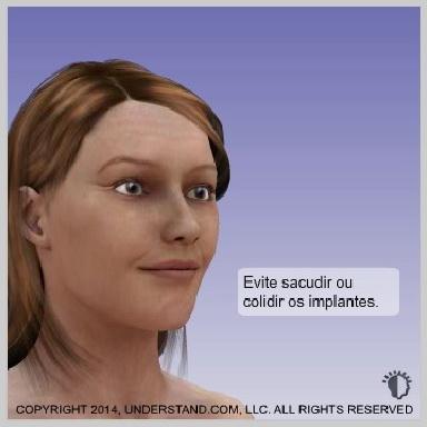 implantes-de-bochecha-malar-RECUPERAÇÃO