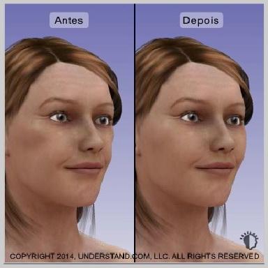 implantes-de-bochecha-malar-RESULTADOS
