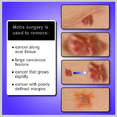 mohs-surgery-PROCEDURE