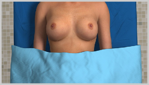 mommy-makeover-MOMMY-MAKEOVER-ROCEDURE-BREASTS