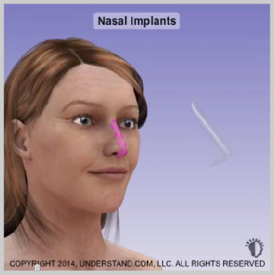 nasal-implants-NASAL-IMPLANTS