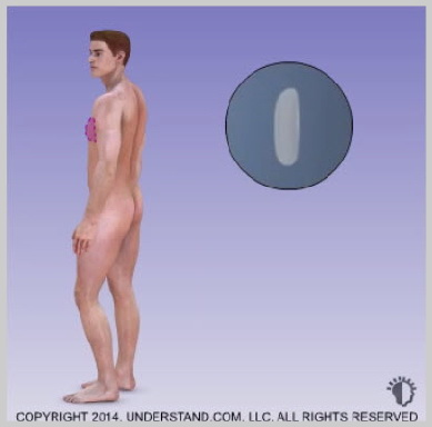 pectoral-implants-INTRODUCTION-OF-CHEST-IMPLAN-IN-MIAMI