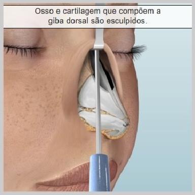 rinoplastia-aberta-REMOVENDO-A-GIBA-DORSAL